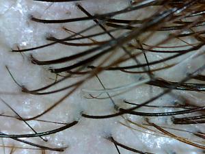 20140131_美木子頭皮