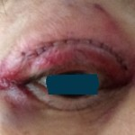 手術翌日右眼