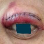 手術翌日左眼
