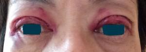 手術翌日両眼